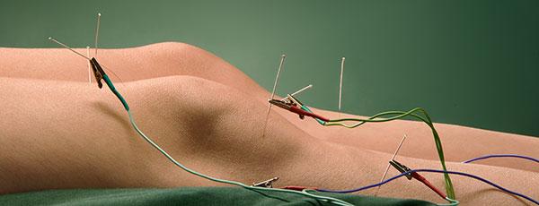 Neuromodulación ecografia neuropatía ciática