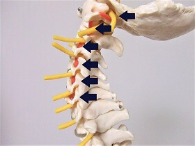 頸椎(首の骨)の中を通る血管を示した画像
