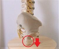 骨盤模型で坐骨をしめした画像