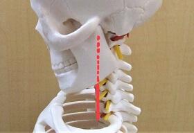 骨格模型でストレートネックを示した画像