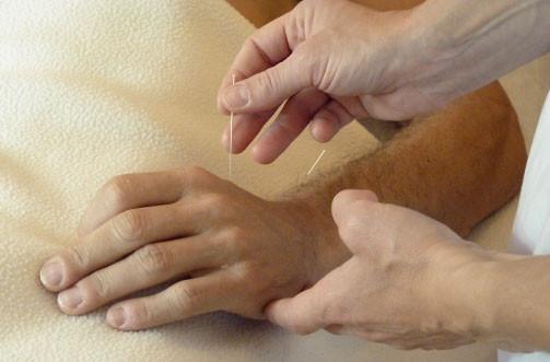 L'acupuncture est l'aspect le plus connu de la MTC, mais il n'est pas systématiquement employé