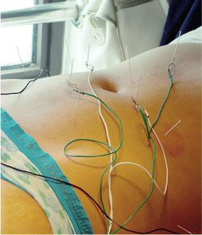 Acupuncture associée à l'électrothérapie