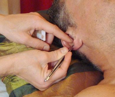 L'auriculothérapie consiste à poser des graines sur les méridiens de l'oreille externe