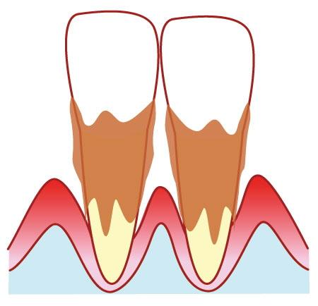 歯周病が進んで歯がグラグラ…