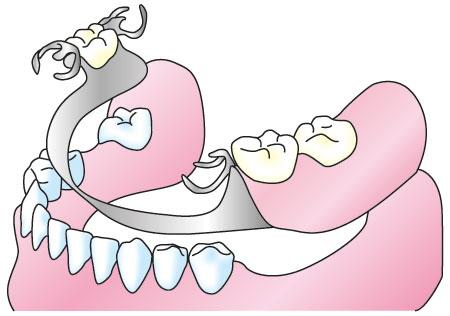 歯を失った場所へ適切な装置を入れましょう