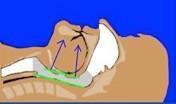 Tratamientos del ronquido
