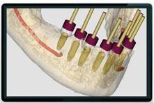 Implantes dentales en Torrejón de Ardoz