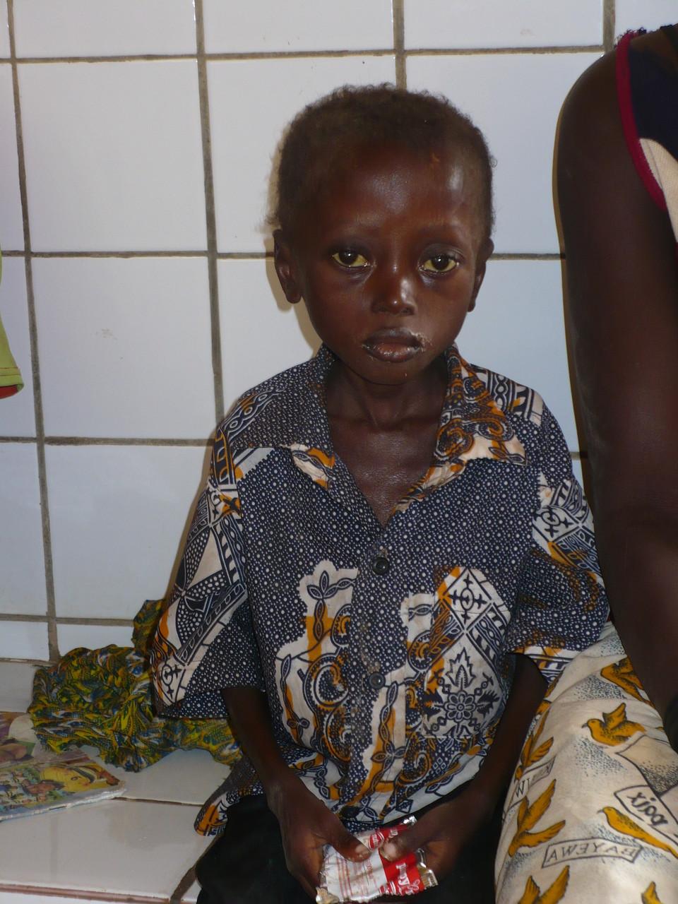 Cas de malnutrition