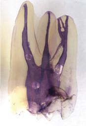 顕微鏡を用いた根管治療