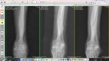 骨折の治癒過程を拡大表示して確認しています。