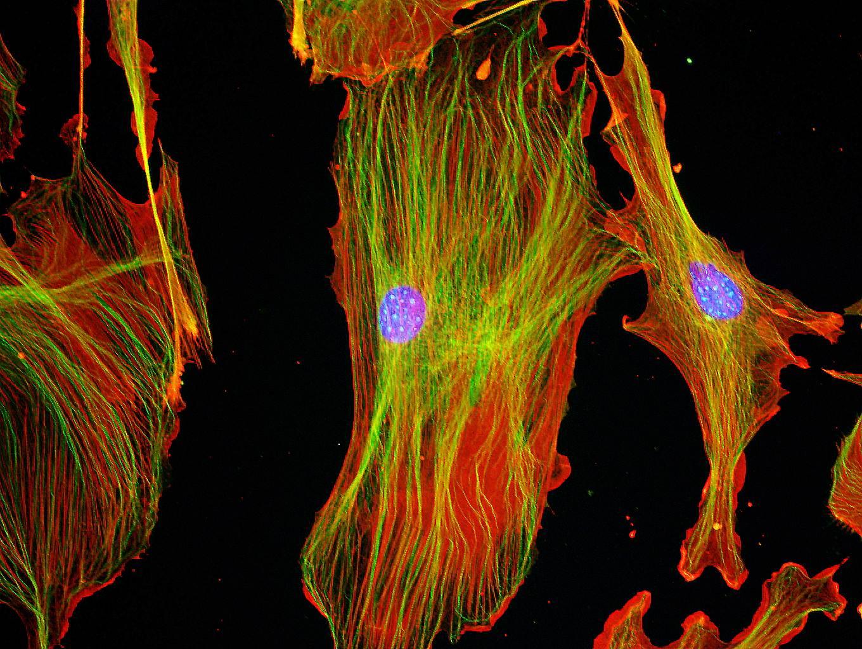 植物の老化と細胞死に関する研究