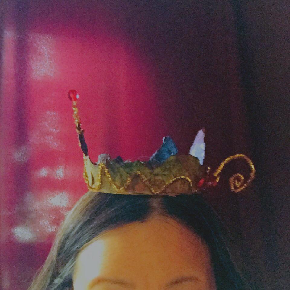 冠を載せましょうね。せい子のおでこ?