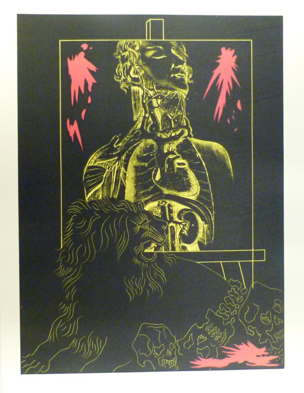 Lithographie - Le Lion abattu par l'homme