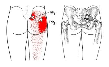 坐骨神経痛、足のシビレ