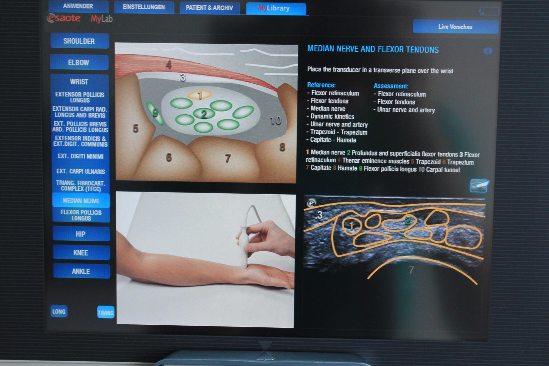 Beispielbild MSU (Muskeloskelettaler Ultraschall) Karpaltunnel/Nervus medianus