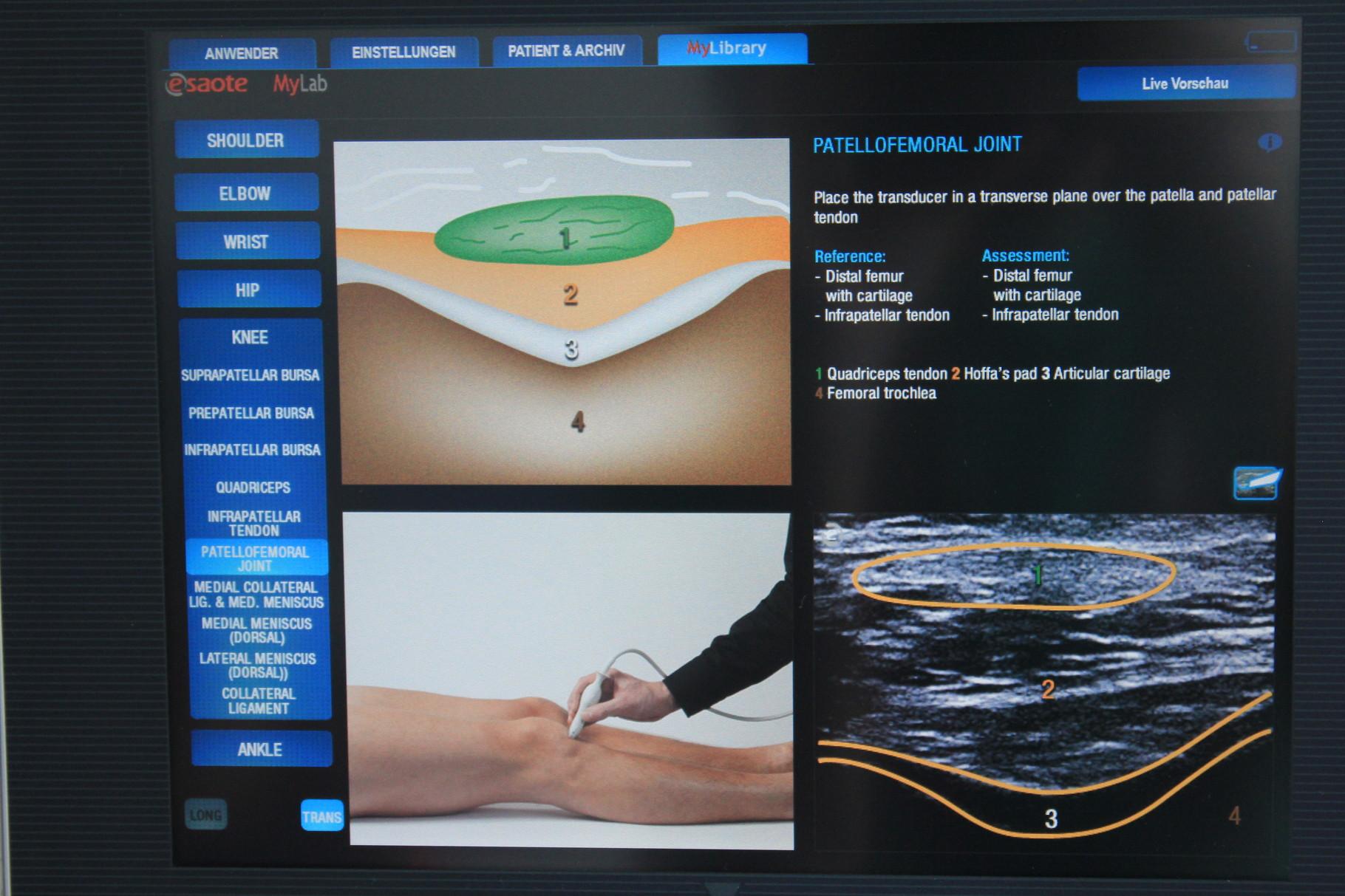 Beispielbild MSU (Muskeloskelettaler Ultraschall) Knie