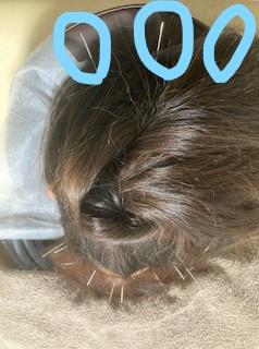 小牧 鍼灸 はり 治療 腰痛 坐骨神経痛 肩こり 首こり 自律神経 頭痛 めまい 過敏性腸症候群 下痢 便秘 食欲不振