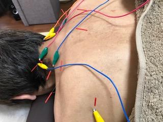 小牧 鍼灸 肩こり 自律神経
