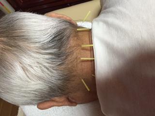 小牧 鍼灸 肩こり 頭痛