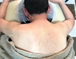 鍼治療が一番効く!と喜んでいただけました♪