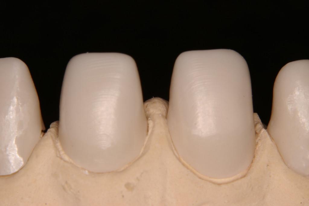 酸化アルミナによりサンドブラストを行い表面を整える