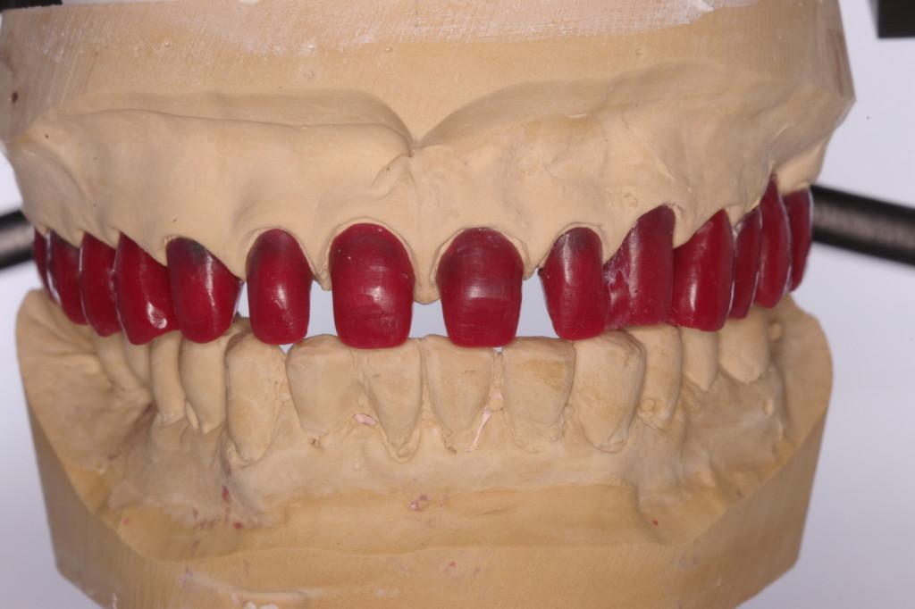対合歯列との関係