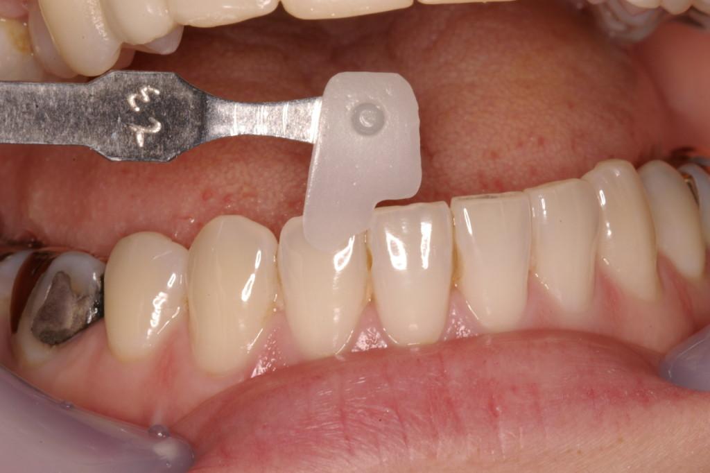 身近な天然歯を観察することが多いと思います