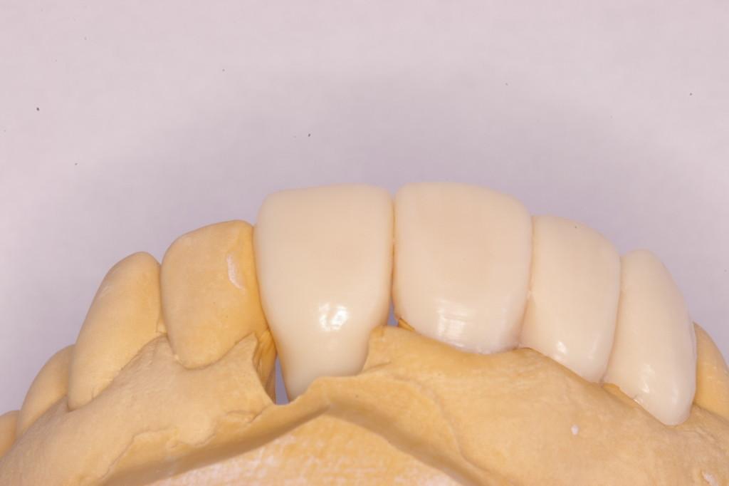 ワックスによる歯冠形態の回復