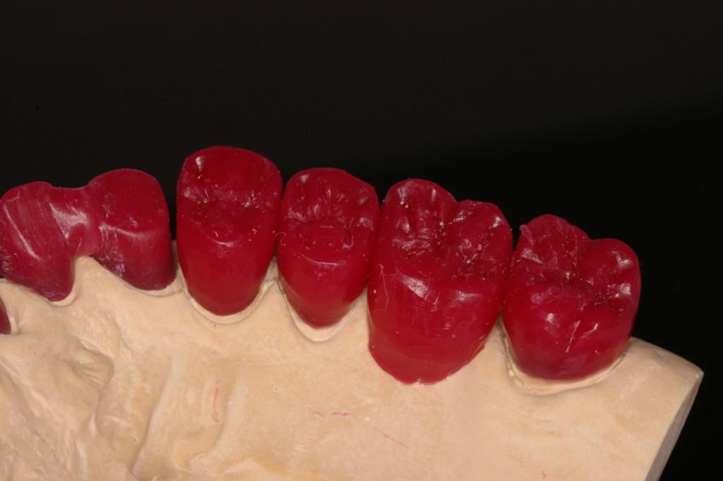 臼歯部はメタルセラミックを予定
