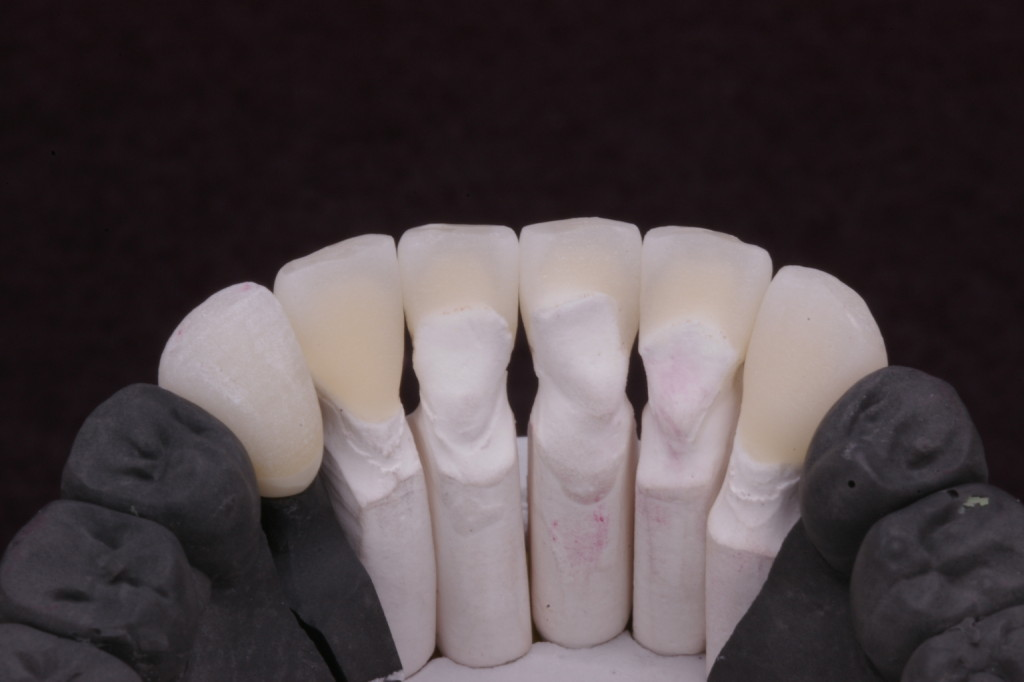 捻転の為-1の舌側近心隆線の所は装着時に移行的にして頂きました
