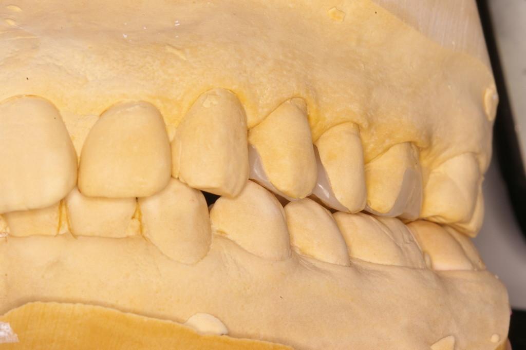 複数歯の製作でコンタクトと咬合高径の最終調整が殆ど無く出来ました
