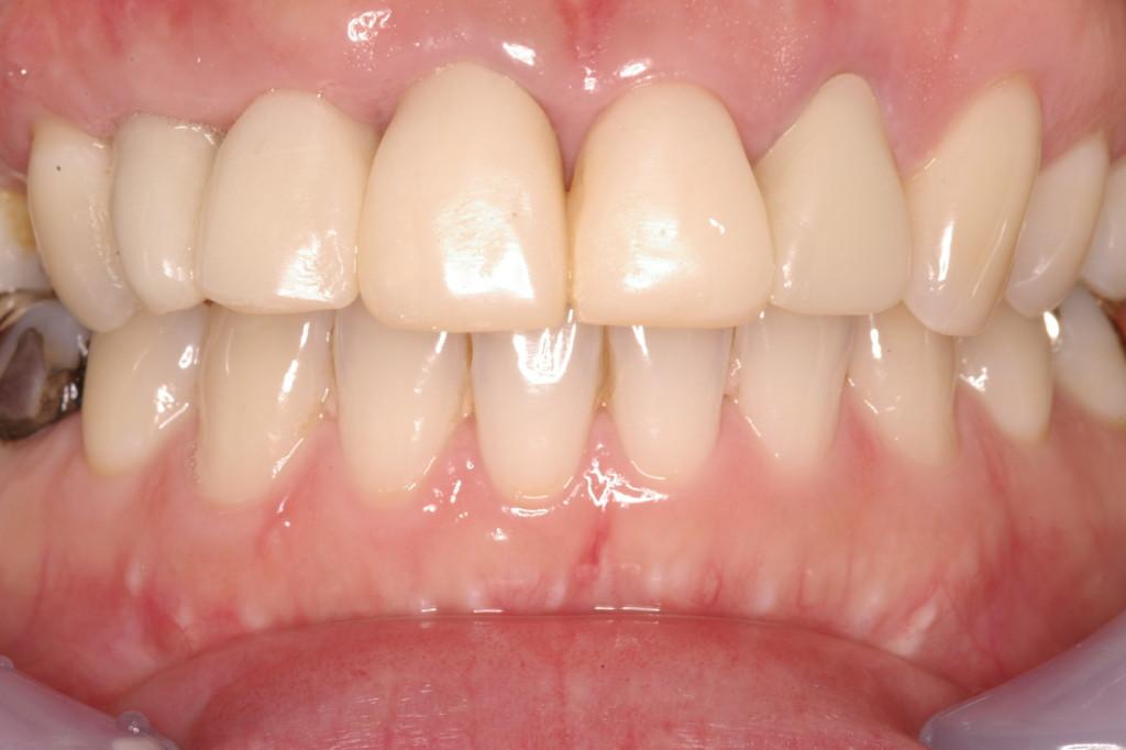 口腔内での整えられたエマージェンスプロファイル