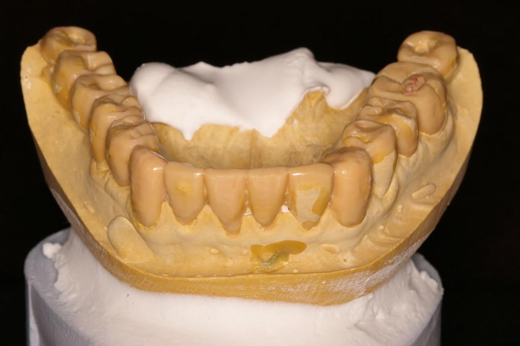 下顎前歯切端より臼歯部頬側咬頭までの連ねた線は?