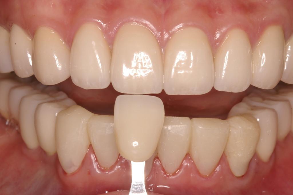 上顎、下顎臼歯との調和を目指します