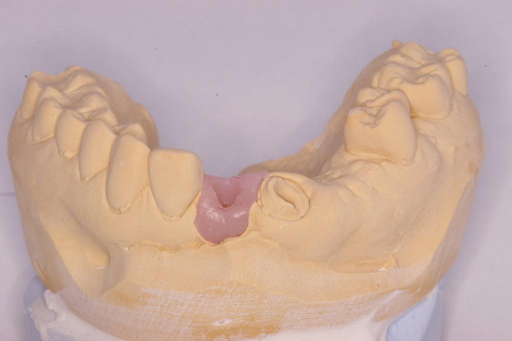 エマージェンスプロファイルの形成にあたり唇側面の歯肉の高さ