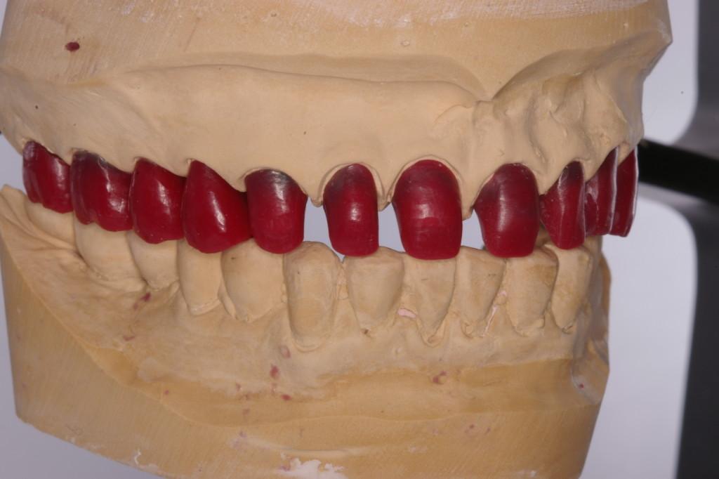 前歯は旧補綴物の撤去後新たに設定された咬合高径に合わせるために