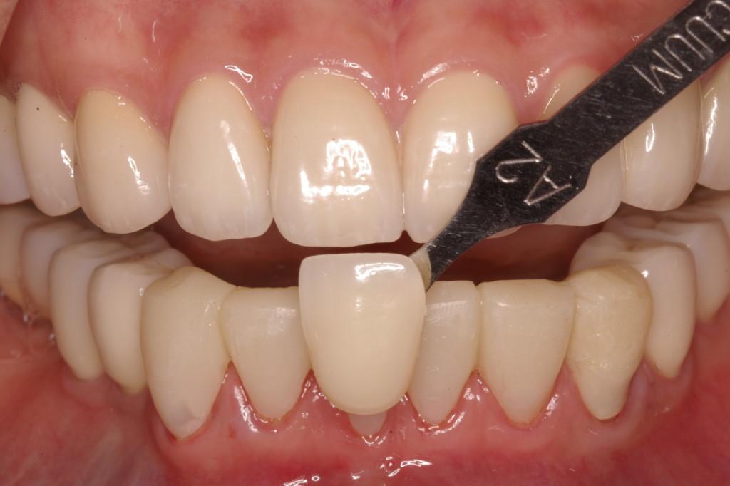 下顎前歯のシェードテイク