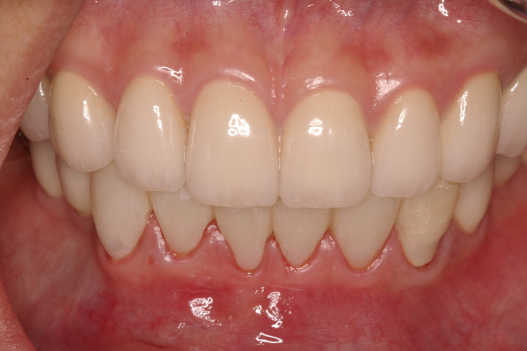 下顎前歯の補綴前のチェック