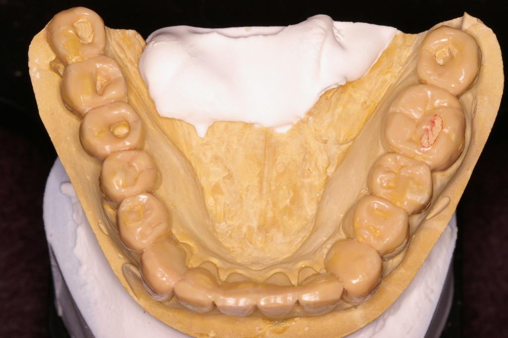 下顎インプラントの歯冠長は?