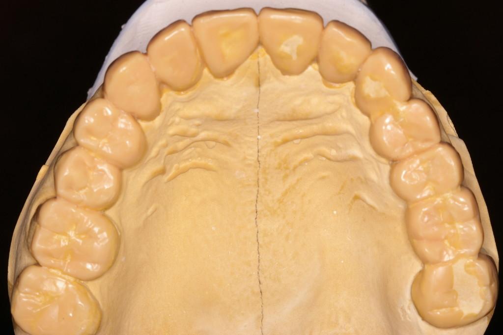 臼歯部の歯冠長、幅径は?