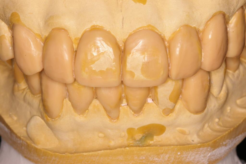 前歯の歯冠長は平均的か?