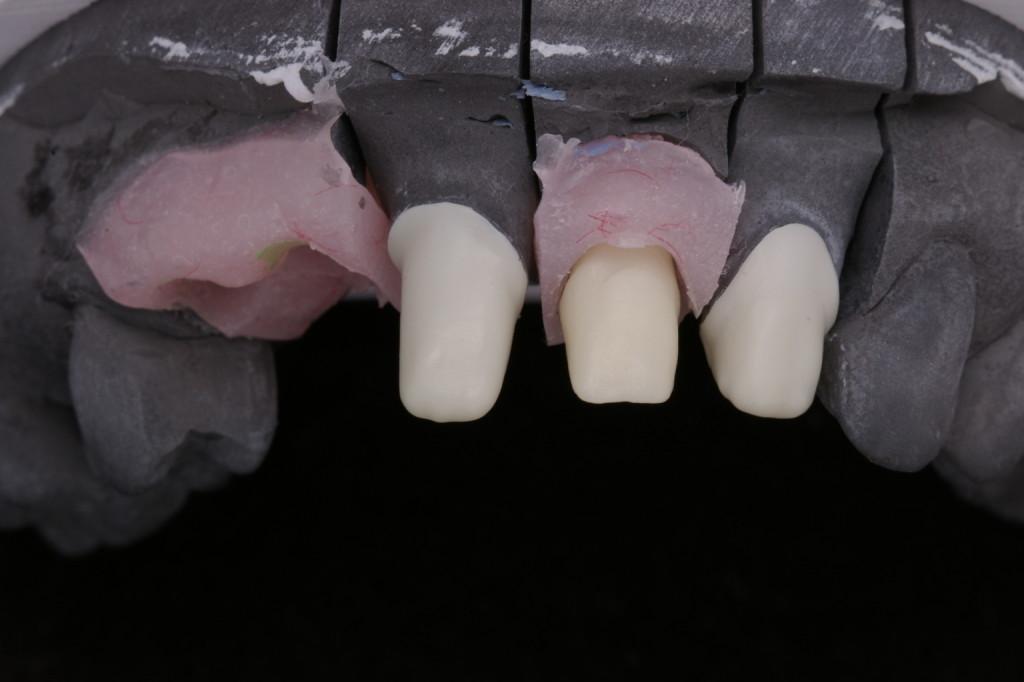 天然歯とインプラントのジルコニアコーピング