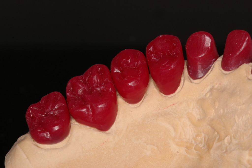 両側最後臼歯はメタル咬合面予定