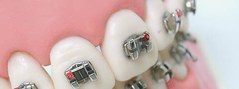 So werden die Brackets, hier am Modell und ohne Korrekturdraht, auf die Zähne geklebt