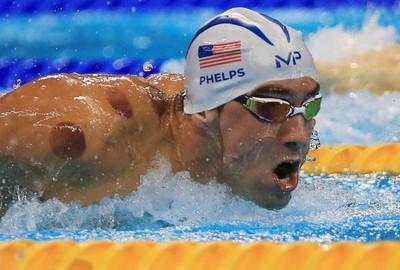 吸い玉 競泳金メダリストフェルプス選手