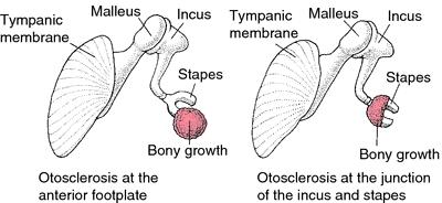 Localización de la otosclerosis