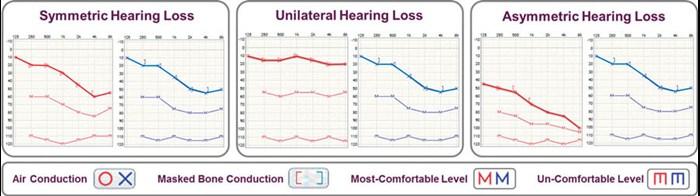 Procesamiento de señal omnidireccional , donde solo se usa un micrófono y los sonidos de todas las direcciones se tratan de la misma manera. El inconveniente de este sistema es que la comprensión del ruido y la localización frontal es más difícil.
