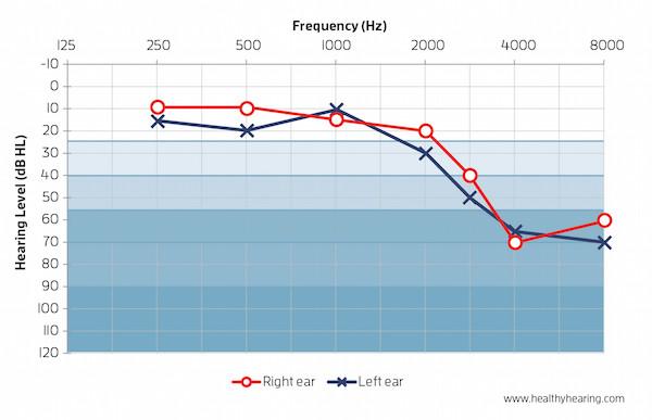 Audiograma. La línea roja pertenece al oído derecho, la línea azul pertenece al oído izquierdo.