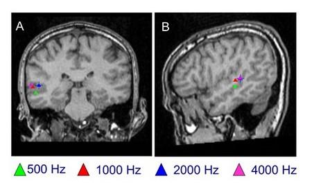 Magnetoencefalografía de la corteza cerebral en individuos normoyentes.