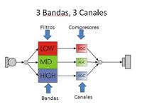 Canales y bandas del audífono.